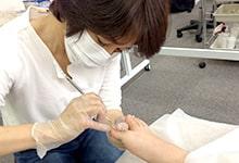 サムネイル:変形爪・爪補強応用セミナー
