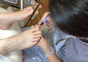写真:人工保護爪形成テクニック3種