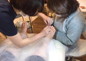 写真:巻き爪・人工保護爪トータルネイルケア
