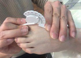 写真:足趾の可動域評価